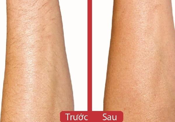 cách triệt lông chân bằng mỡ trăn, mỡ trăn triệt lông chân, cách tẩy lông chân bằng mỡ trăn, mỡ trăn trị lông chân, mỡ trăn tẩy lông chân, triệt lông chân bằng mỡ trăn